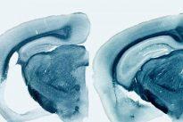 Reducir los niveles de proteína ApoE es la clave para prevenir o detener el alzhéimer