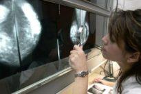 Condenan a Mapfre a indemnizar con 160.000 euros a una paciente a la que se diagnosticó tarde un cáncer