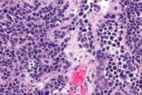 Untest predice si un cáncer de vejiga progresará de forma agresiva