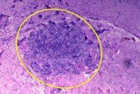 Imanes que detectan precozmente el cáncer