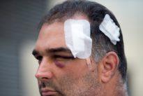 El turista agredido por los manteros en Barcelona: «El golpe que me dieron fue para matarme»