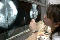 El cribado de cáncer de mama no reduce la mortalidad, los nuevos tratamientos sí