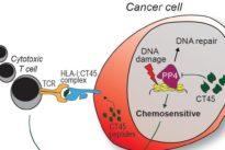 Primer biomarcador que predice si una terapia será eficaz en cáncer de ovario