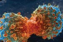 Sin el tabaco, el cáncer de pulmón sería una enfermedad rara