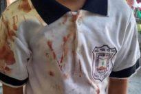 La terrible imagen de una camiseta ensangrentada que muestra el bullying que sufre un niño en México