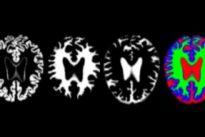 Descubierto un nuevo biomarcador para detectar precozmente la enfermedad alzhéimer