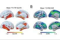 Dormir mal puede ser un síntoma de alzhéimer en la vejez