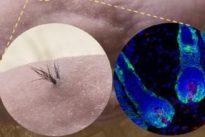 Adiós a la calvicie: Consiguen fabricar pelo a partir de células madre